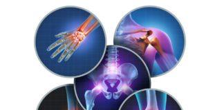 CBD gegen chronische Schmerzen