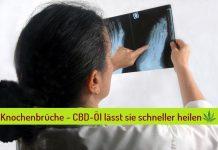 cbd-oel knochen