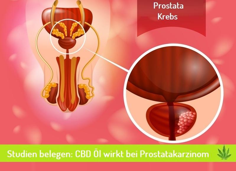 CBD öl bei prostatakarzinom