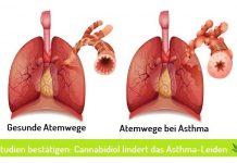 CBD Öl bei Asthma