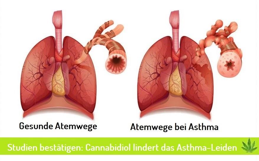 Cannabidiol bei Asthma
